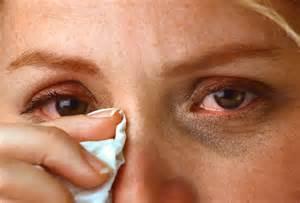 Аллергия чешутся глаза и насморк чем лечить