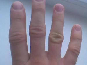 Опухают суставы на пальцах рук