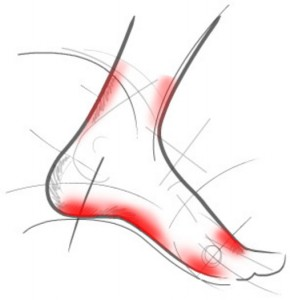 Болит нога в области стопы при ходьбе или в покое: причины, лечение болей в стопе ( отзывы)
