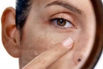 Как замаскировать пигментные пятна на лице