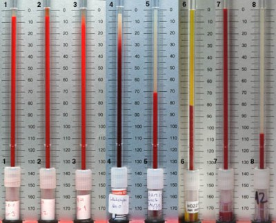 Причины высокого холестерина у женщин после 30