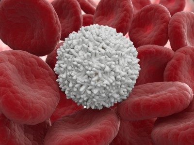 Лейкоз это лейкоциты